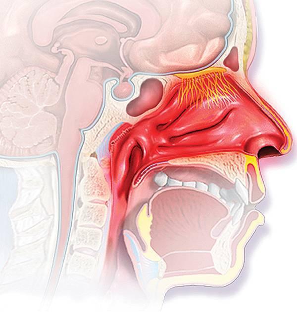Хронический атрофический фарингит – симптомы и лечение у взрослых