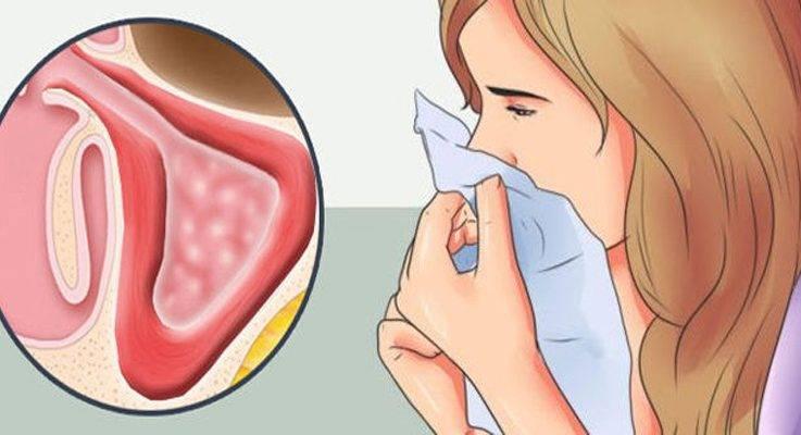 как лечить гнойный ринит