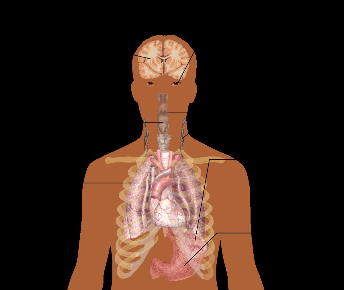 Лимфаденит при ангине: причины, симптомы и методы терапии