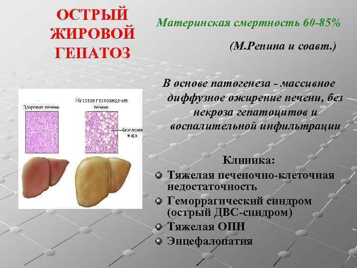 лекарства при жировом гепатозе печени
