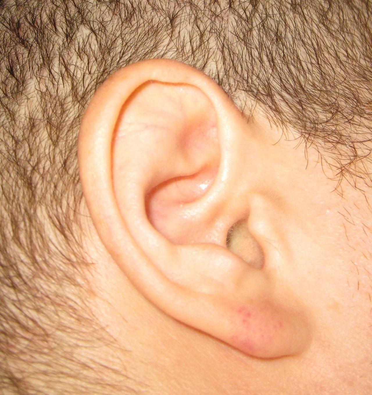 Воспаление мочки уха: лечение