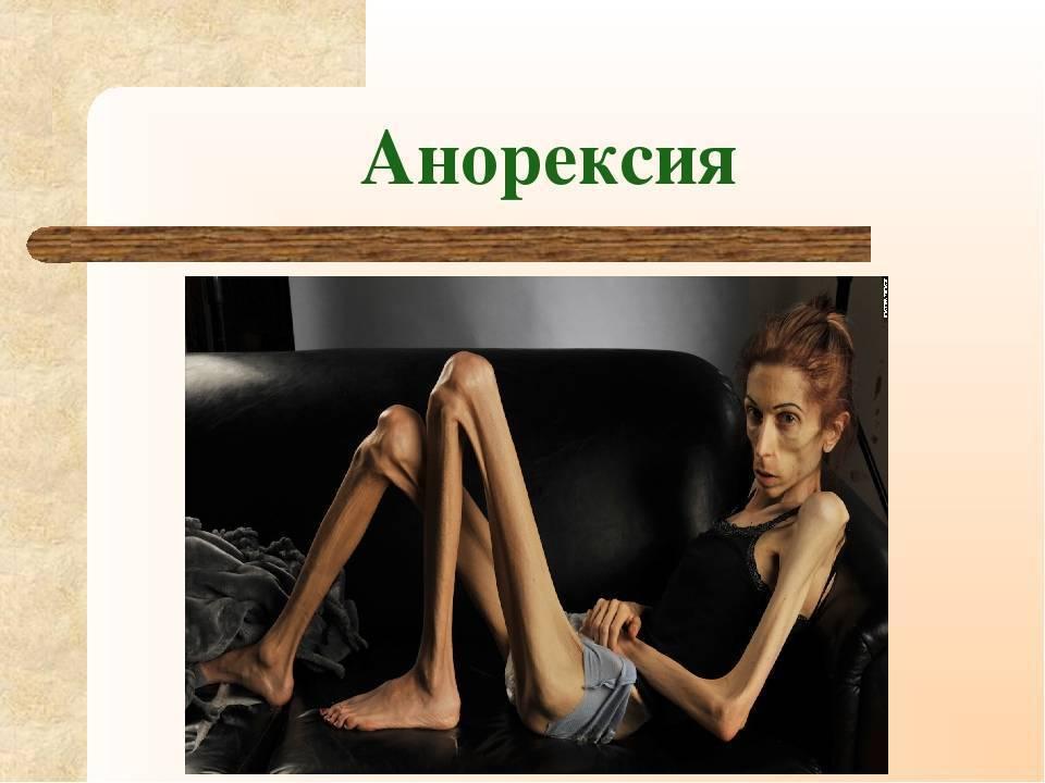 что такое анорексия симптомы