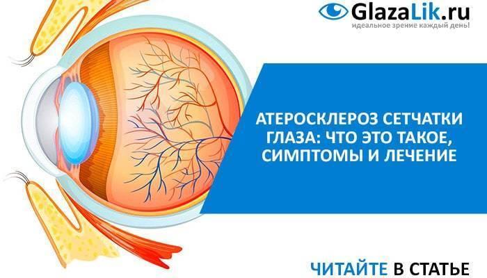 Ангиосклероз сетчатки глаза – что это такое: симптомы и лечение