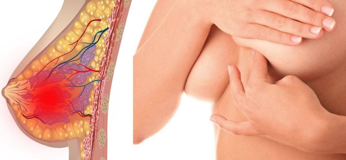 Мастопатия при грудном вскармливании: польза от кормления грудью