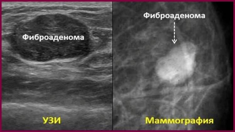 фибра аденома молочной железы лечение