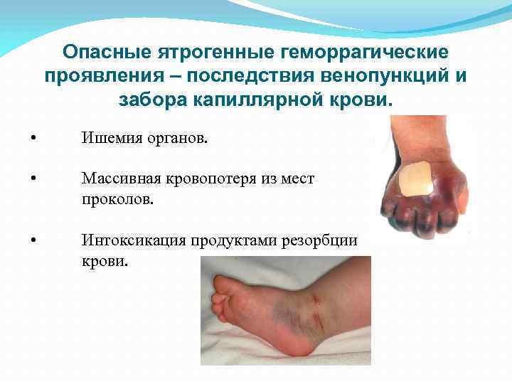 Формы геморрагической болезни новорожденных