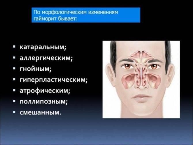 Симптомы и лечение аллергического гайморита и синусита