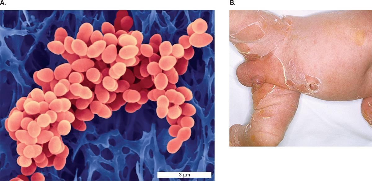 Staphylococcus aureus: характеристика, патогенность, диагностика, как лечить