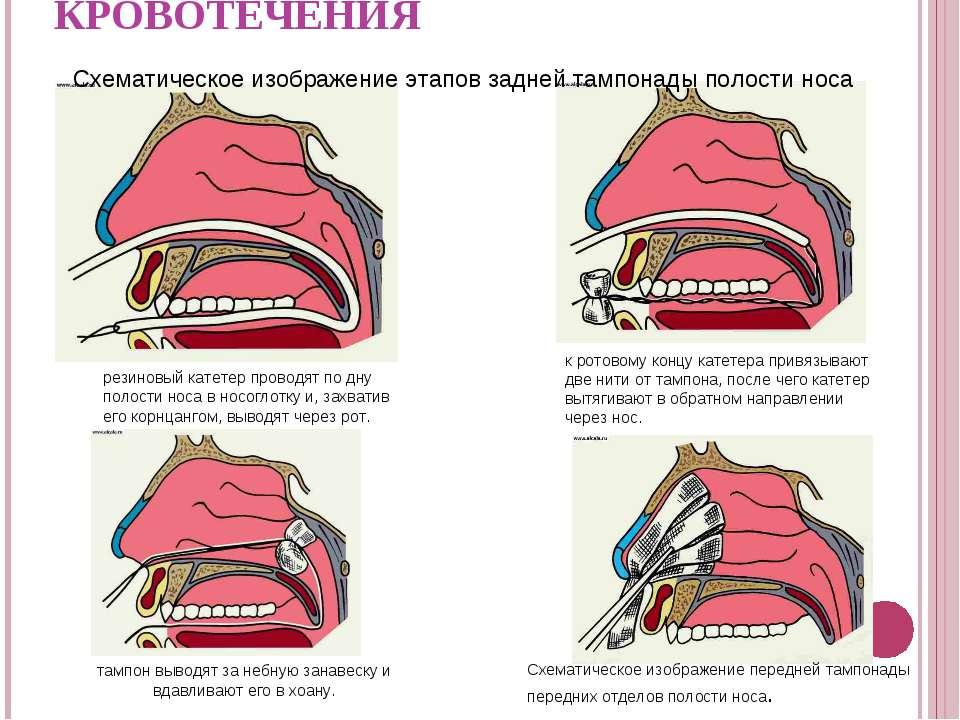 как сделать так чтобы кровь из носа потекла