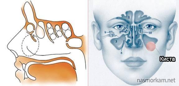 основная пазуха носа киста