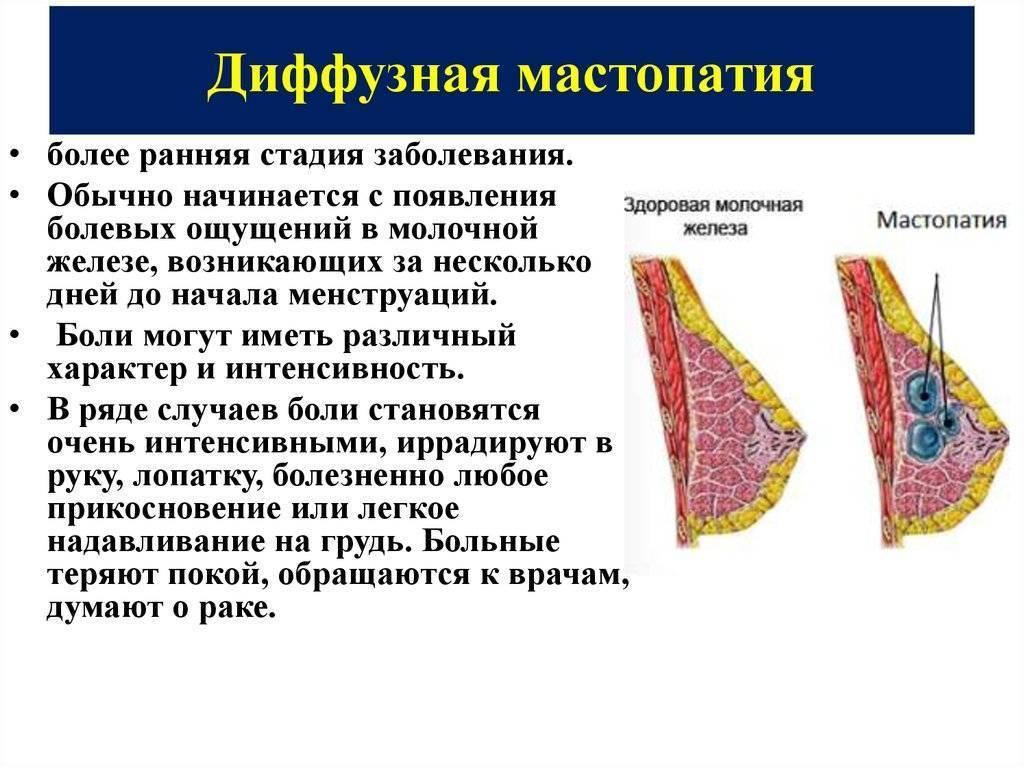 Фиброзная, кистозная, диффузная мастопатия, симптомы и лечение рака молочной железы