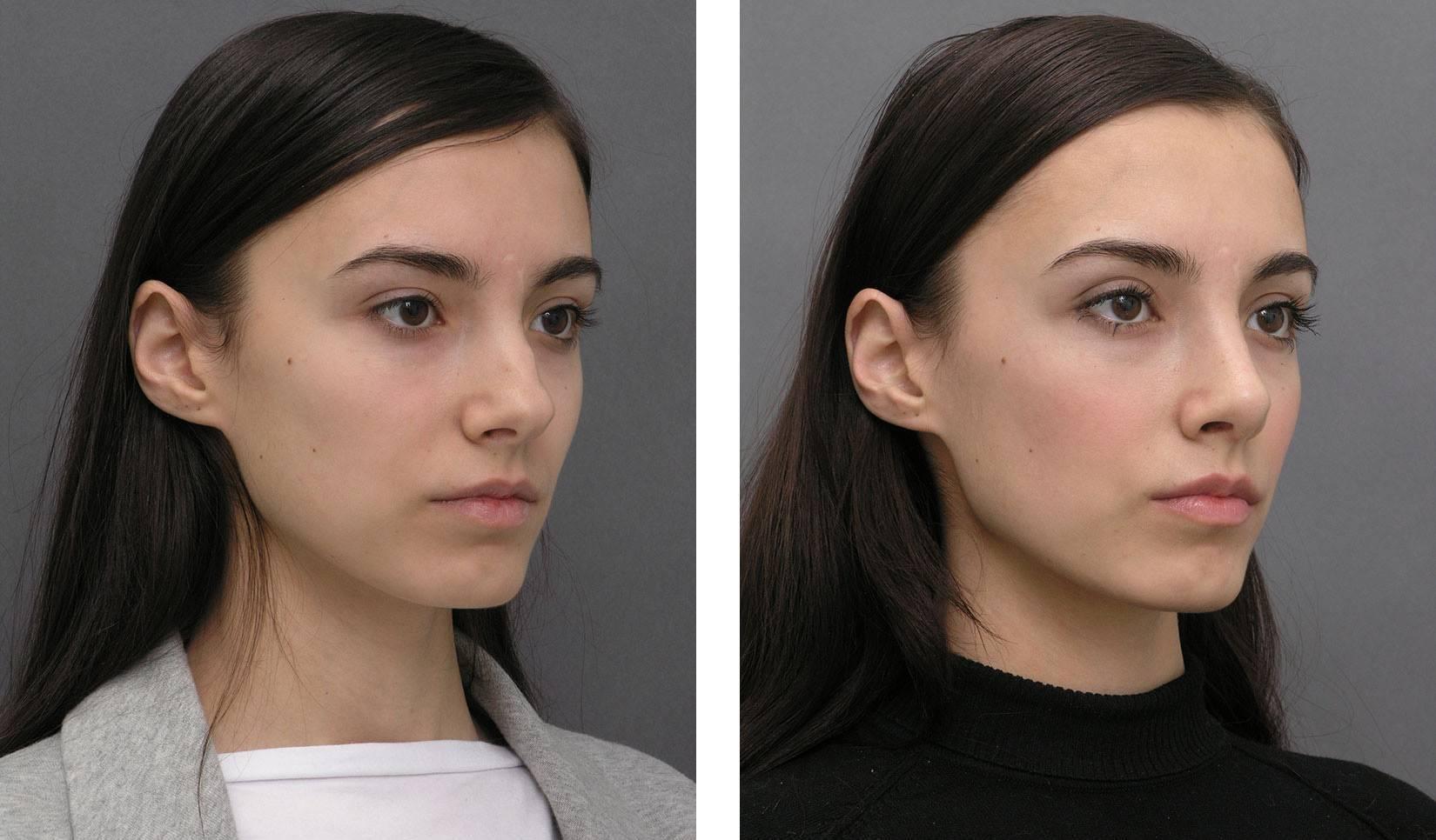 исправить нос без операции