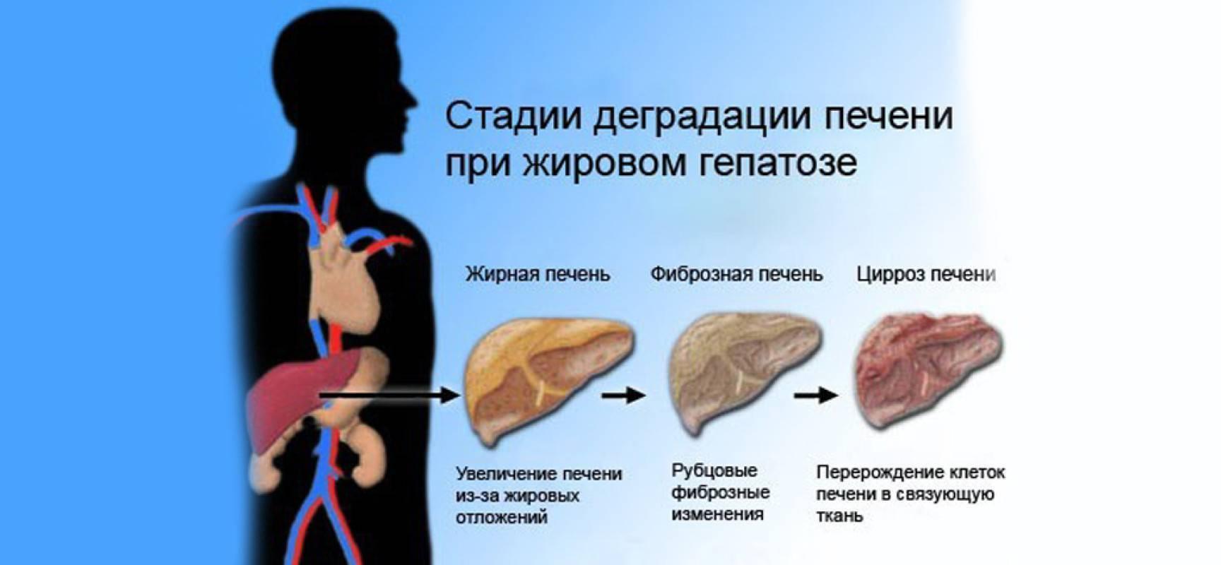 диффузное изменение печени по типу жирового гепатоза