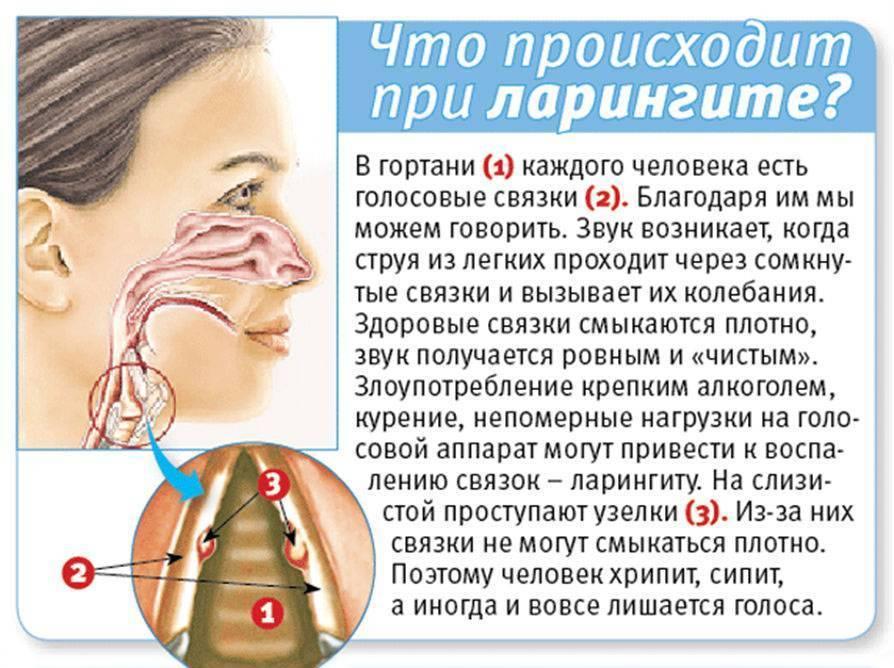 Ларингит. причины, симптомы и лечение ларингита.
