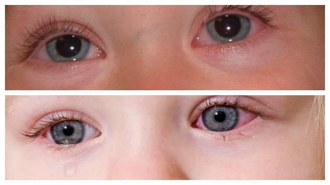 У ребенка круги под глазами красные и розовые пятна – причины