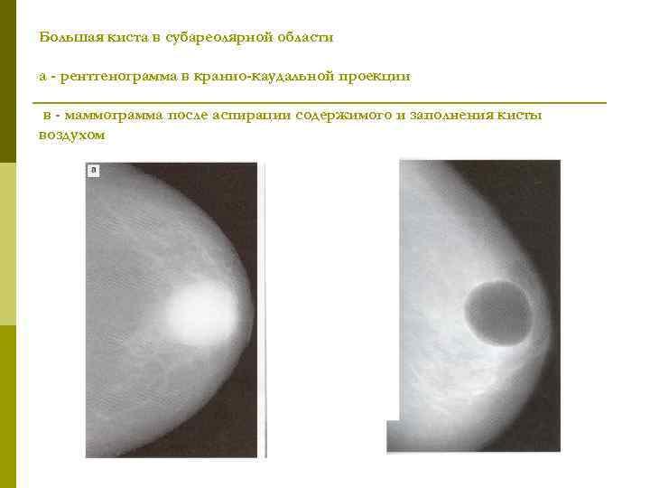 Киста молочной железы, что это такое, как лечить. симптомы и методы лечения кисты молочных желез