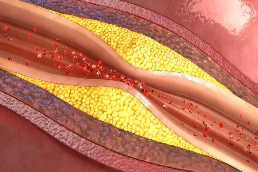 Атеросклероз что это такое симптомы