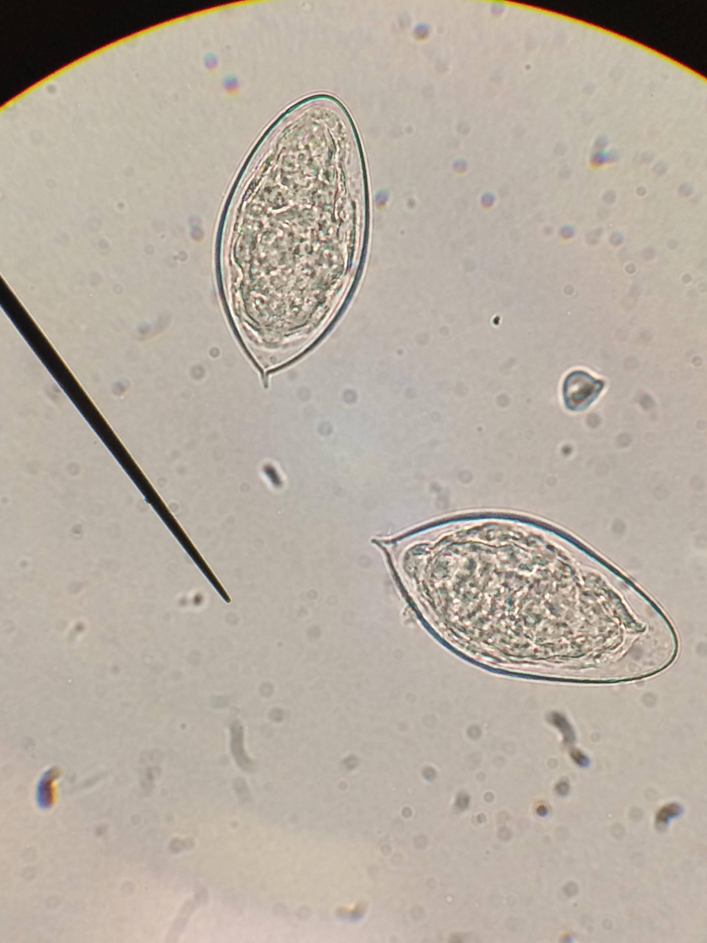 шистоматоз мочевого пузыря