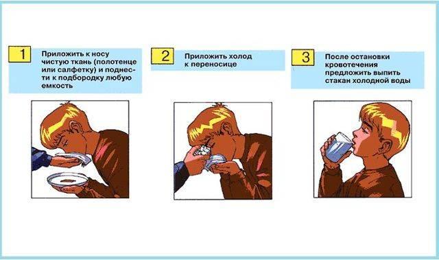 Рекомендации, как правильно остановить кровь из носа у ребенка в домашних условиях