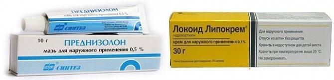 Атопический (аллергический) дерматита у ребенка. симптомы и лечение