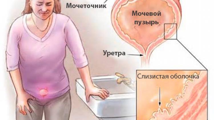 Цистит и уретрит лечение
