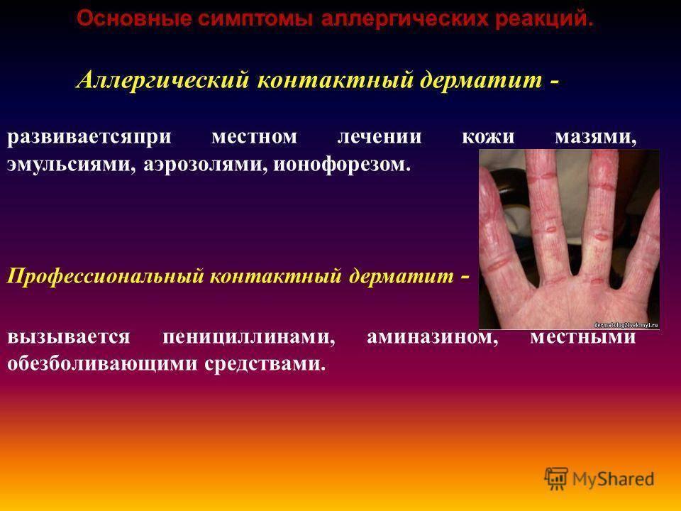 Аллергический дерматит – симптомы и лечение, дерматит на руках и на лице