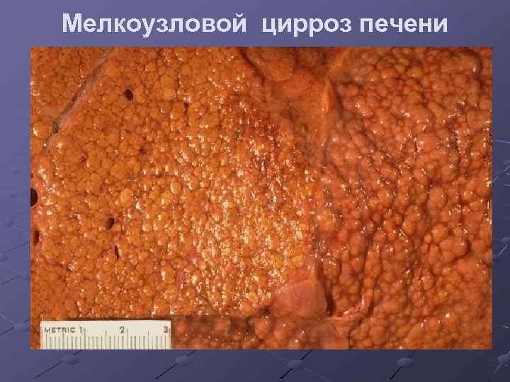 Что такое мелкоузловой цирроз печени? обзор причин возникновения и способов лечения