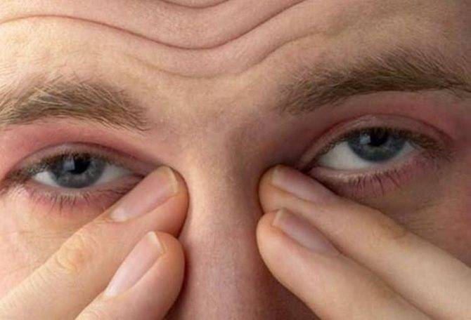 почему слезятся глаза на улице что делать