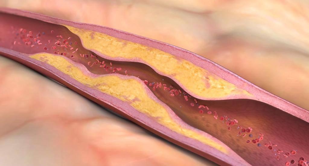 бляшки холестерин сосуды