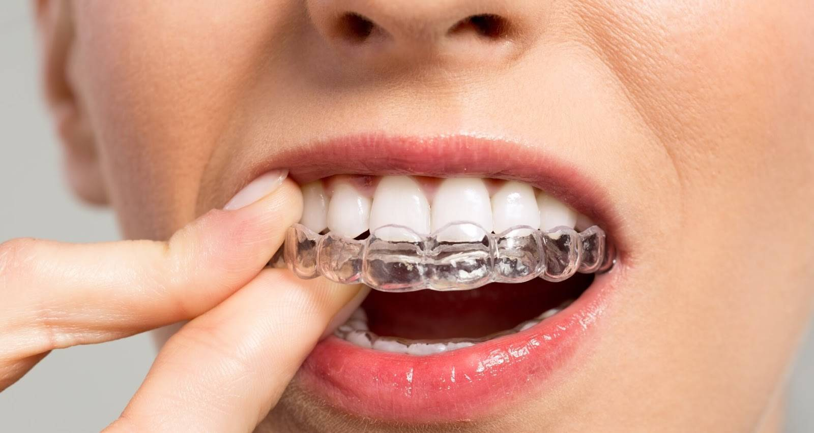 Частичная брекет-система — фото зубных конструкций