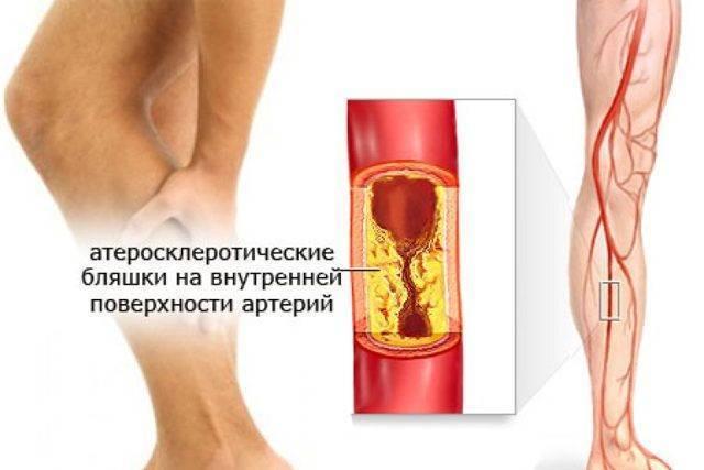 атеросклероз варикоз