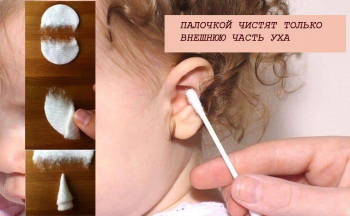 как почистить уши ребенку 3 лет