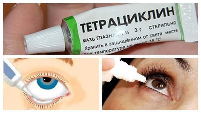лечение ячменя тетрациклиновой мазью