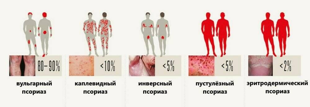 Псориаз - симптомы и лечение