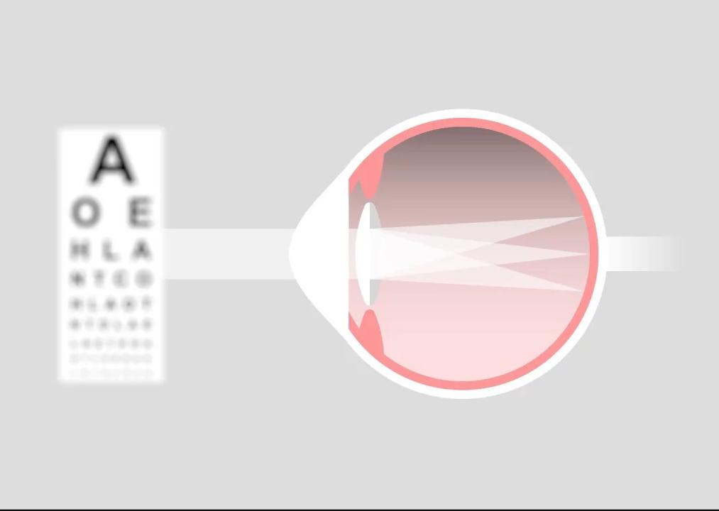 гиперметропический астигматизм обоих глаз