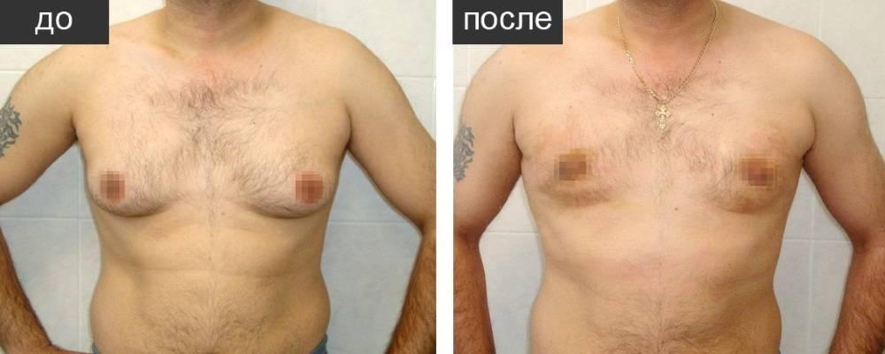 гинекомастия у мужчин лечение операция