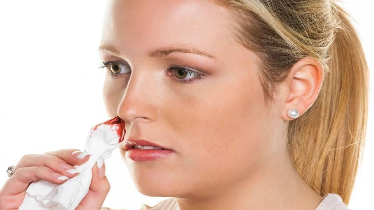 сгустки крови из носа по утрам