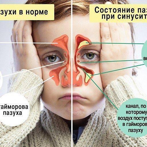 Острый гайморит - симптомы, лечение острого двустороннего гнойного гайморита