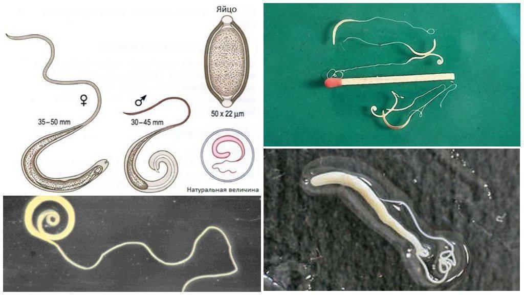 разновидности червей