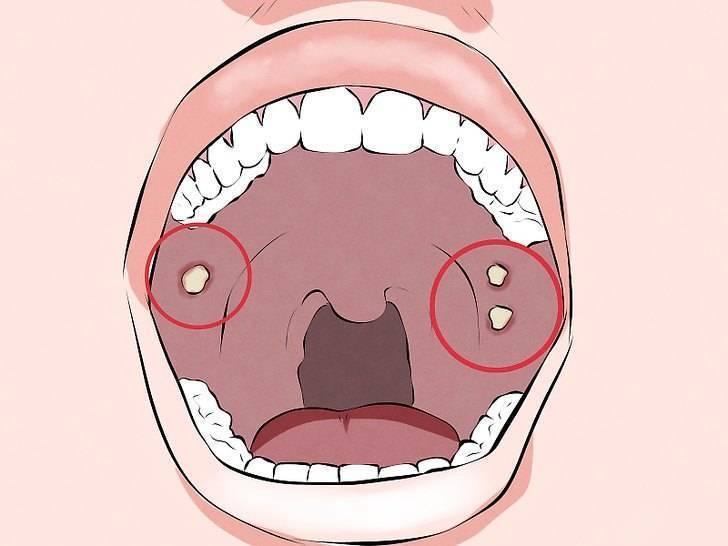 Восстановление слизистой горла при фарингите