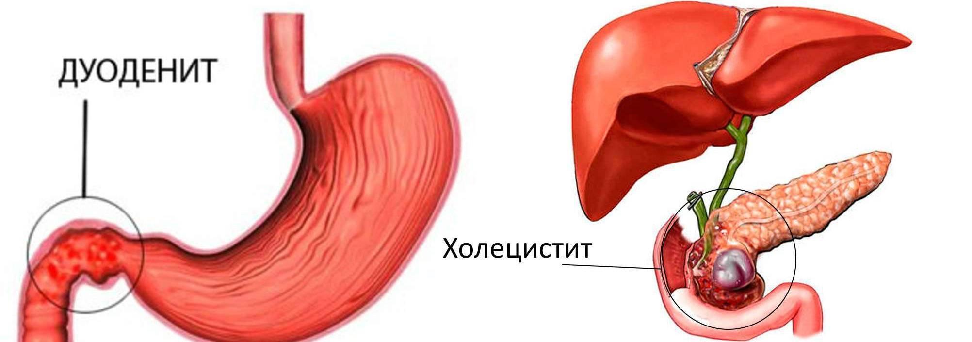 Симптомы и способы лечения холестаза желчного пузыря