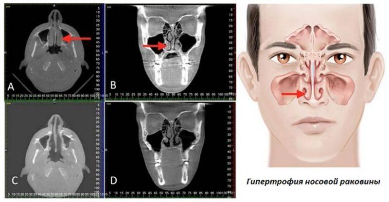 Лечение гипертрофического ринита без операции