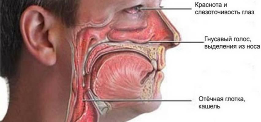 хронические заболевания носоглотки