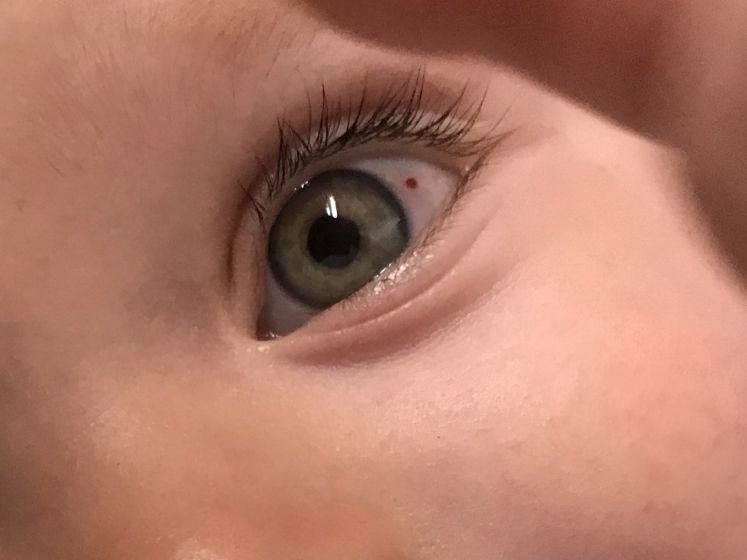 Лопнул сосуд в глазу у ребенка – повод ли это для беспокойства?