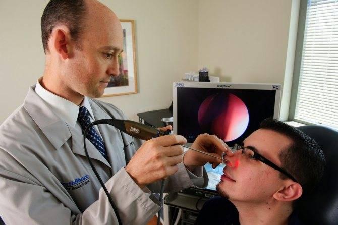 Способы лечения синусита
