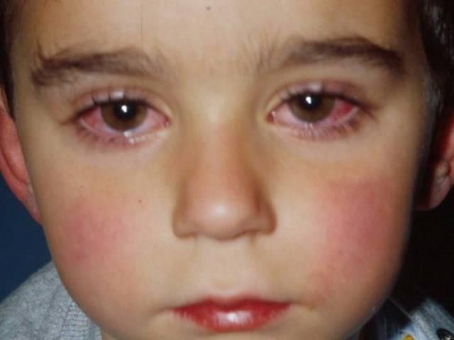 вирусный конъюнктивит у детей лечение комаровский