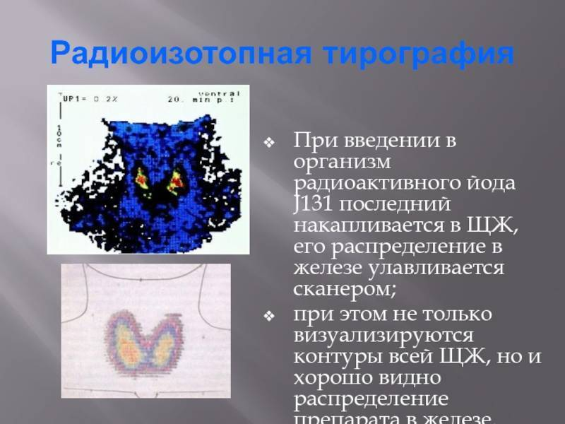 Радиоактивный йод – лечение щитовидки. лечение радиоактивным йодом щитовидной железы – последствия
