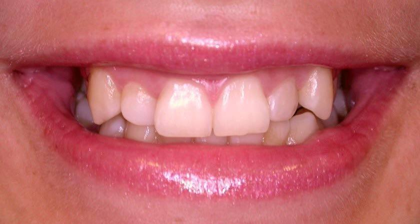 У ребенка криво растут коренные зубы спереди
