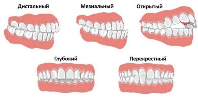 Ну-ка зубки, встаньте в ряд! как избежать проблем с прикусом у детей