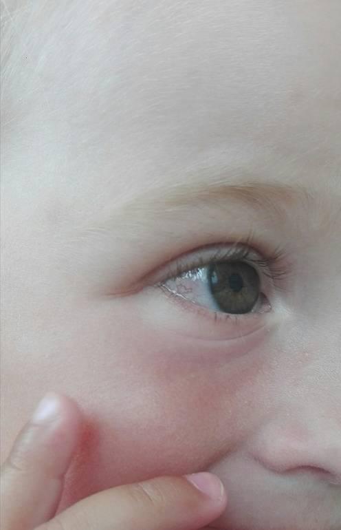 Почему у ребенка лопаются сосуды в глазу